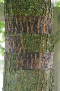 Schnürspuren von zu spät entfernter Kunststoff-Baumbindung